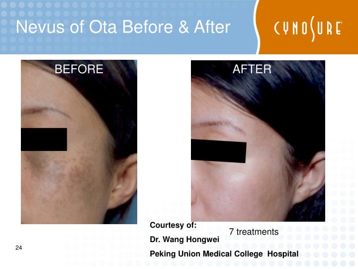 Nevus of Ota Before & After