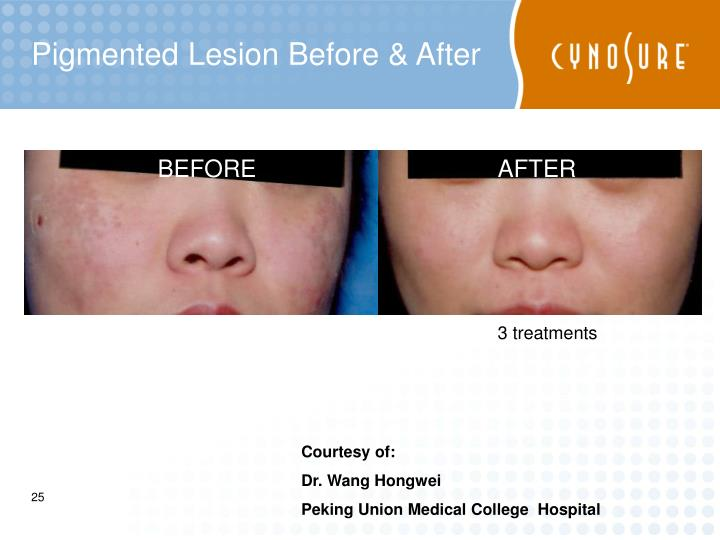 Pigmented Lesion Before & After