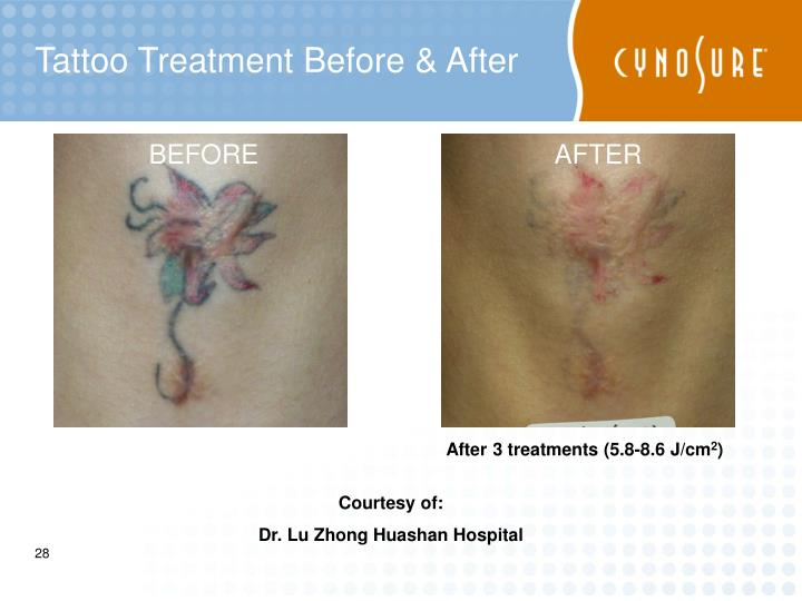 Tattoo Treatment Before & After