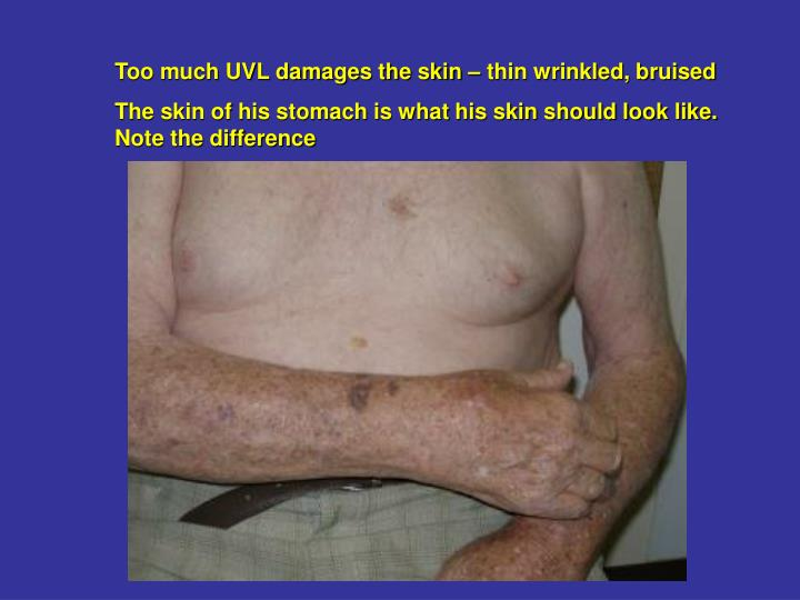 Too much UVL damages the skin – thin wrinkled, bruised