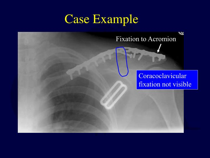 Coracoclavicular fixation not visible