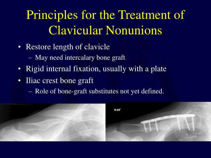 Principles for the Treatment of Clavicular Nonunions