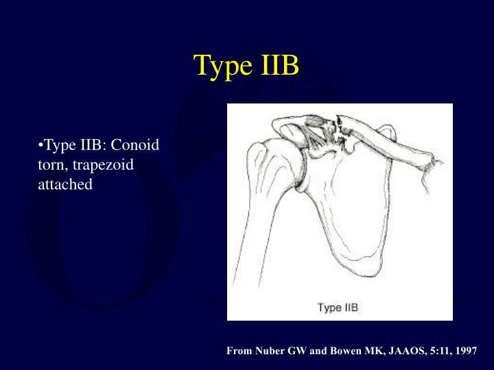 Type IIB