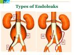 type s of endoleaks