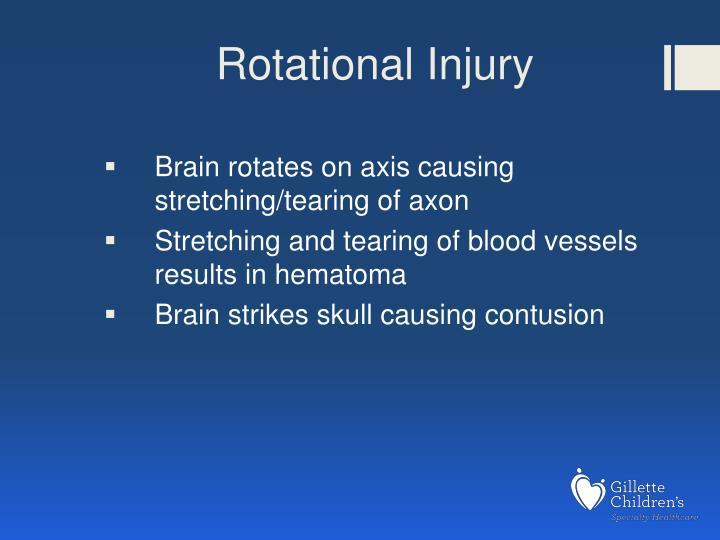 Rotational Injury