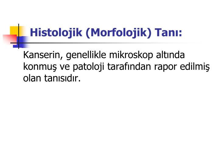 Histolojik (Morfolojik) Tanı: