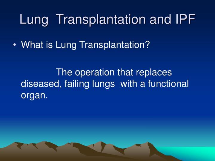 Lung  Transplantation and IPF