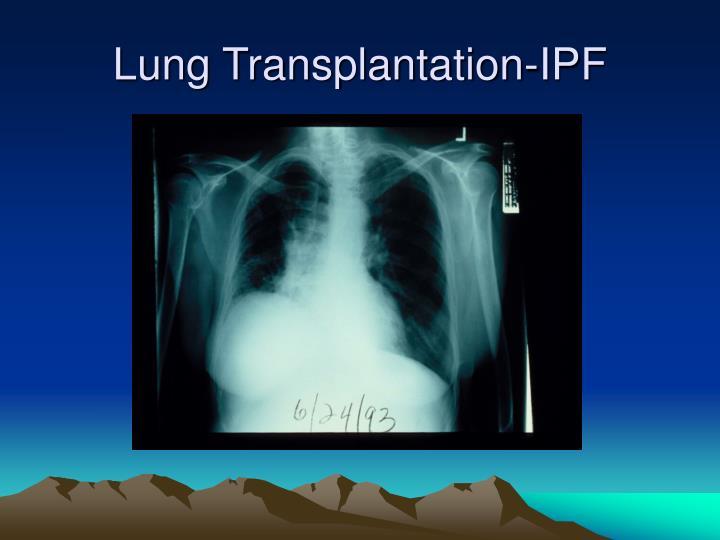 Lung Transplantation-IPF