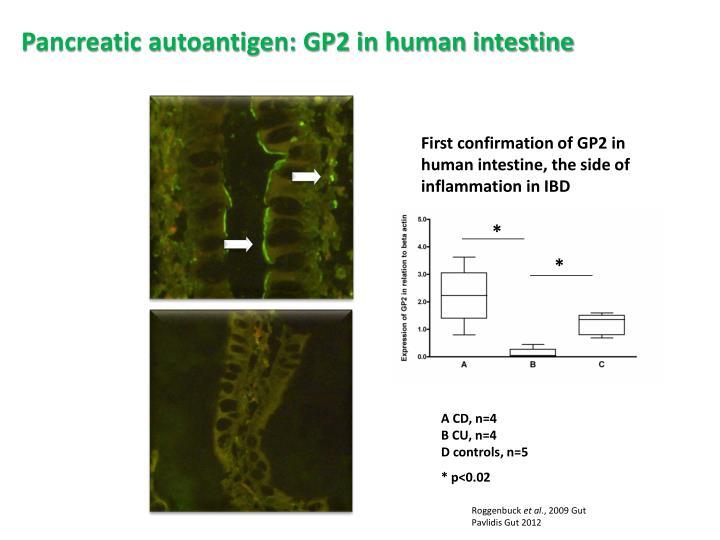 Pancreatic autoantigen: GP2 in human intestine