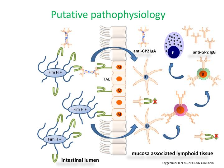 Putative pathophysiology