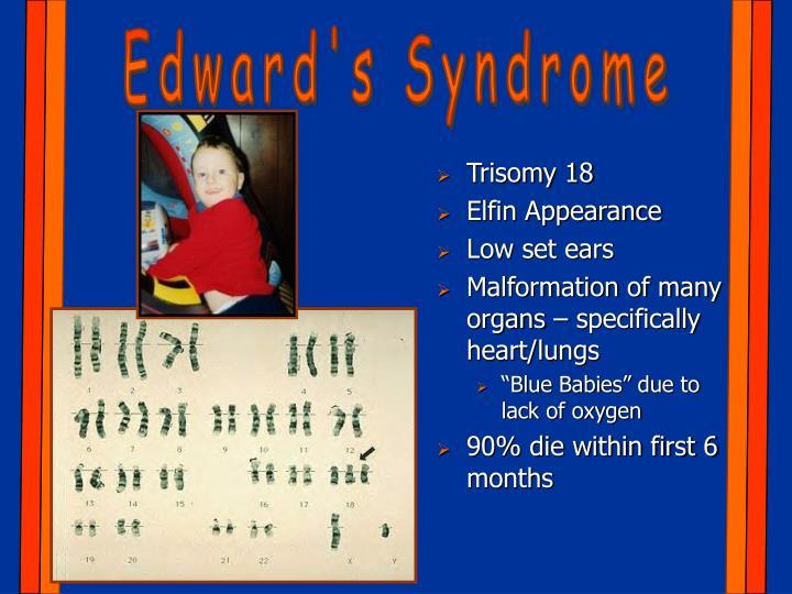 Edward's Syndrome
