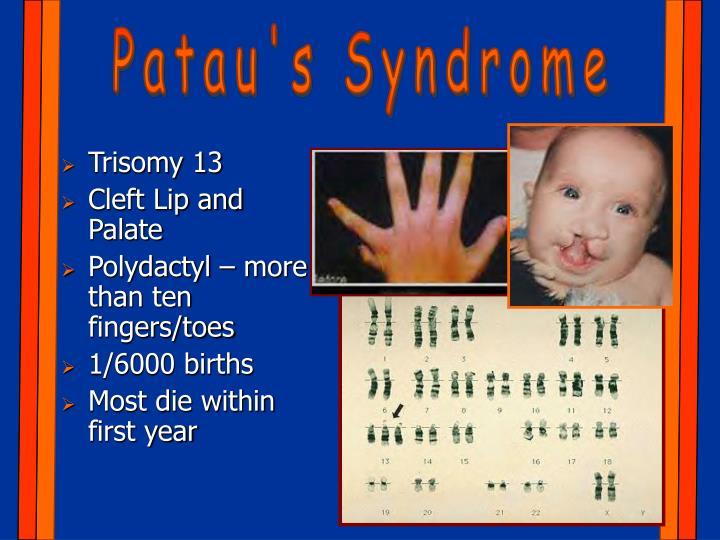 Patau's Syndrome