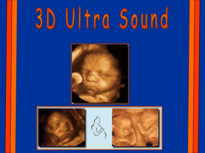 3D Ultra Sound