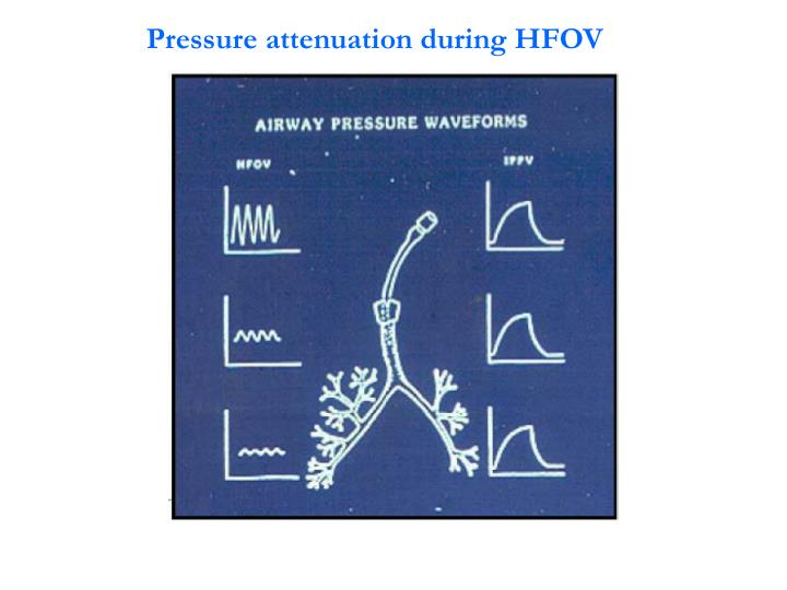Pressure attenuation during HFOV