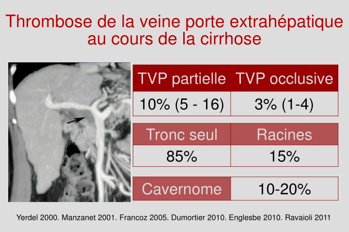 Ppt cirrhose thrombose et anticoagulation powerpoint presentation id 3351121 - Thrombose de la veine porte ...