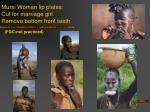 mursi woman lip plates cut for marriage girl remove bottom front teeth fgc not practiced