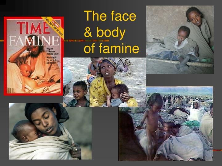 The face & body of famine