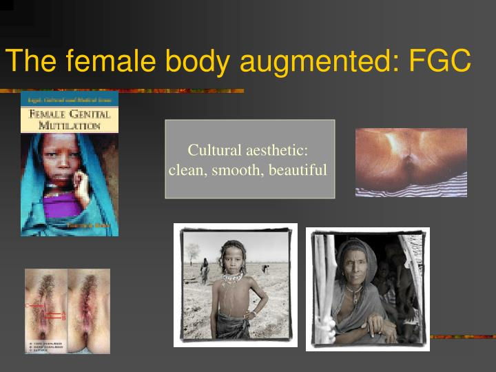 The female body augmented: FGC
