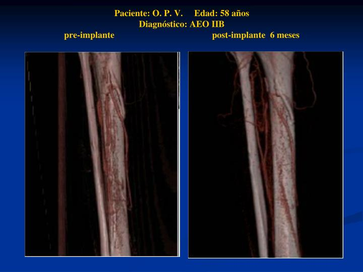 Paciente: O. P. V.     Edad: 58 años