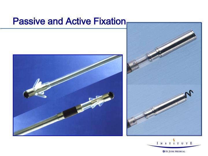 Passive and Active Fixation
