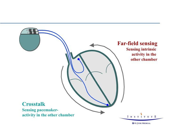 Far-field sensing