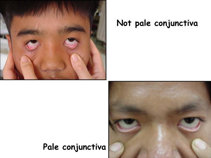 Not pale conjunctiva