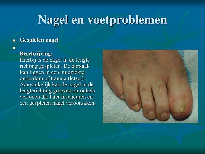 Gespleten nagel