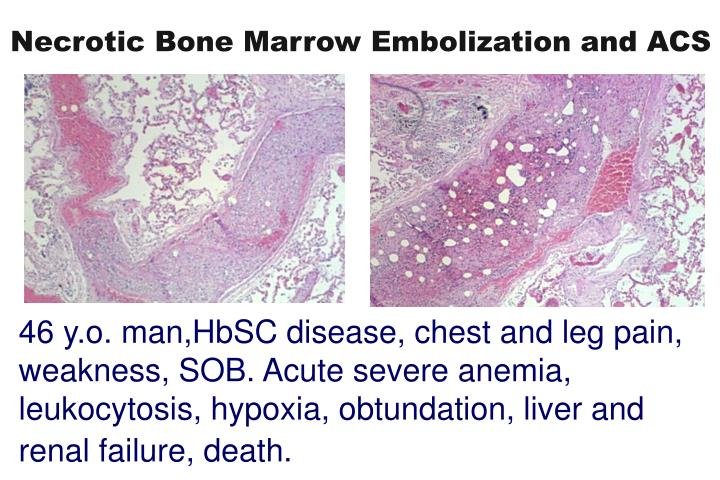 Necrotic Bone Marrow Embolization and ACS