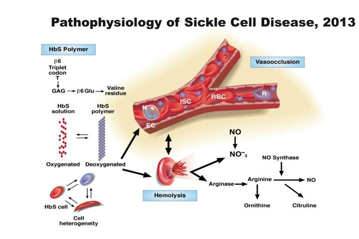 Pathophysiology of Sickle Cell Disease, 2013