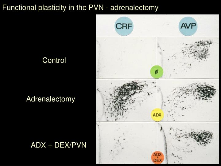 Functional plasticity in the PVN - adrenalectomy