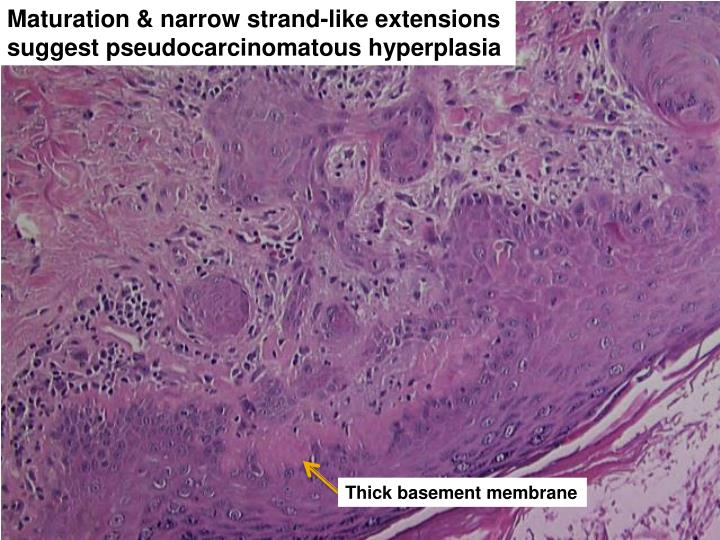 Maturation & narrow strand-like extensions suggest pseudocarcinomatous hyperplasia