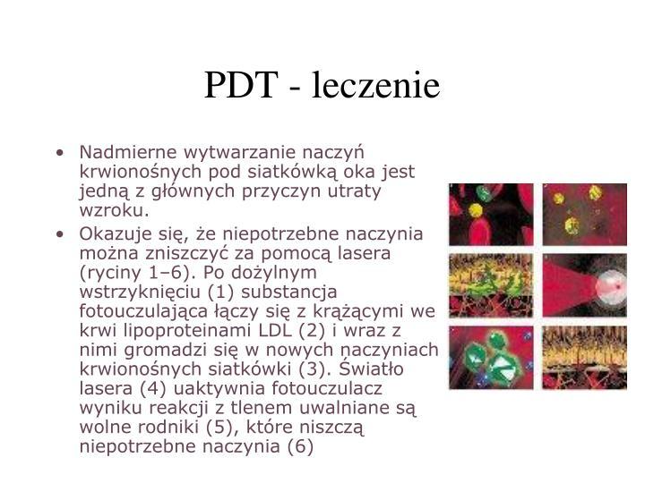 PDT - leczenie