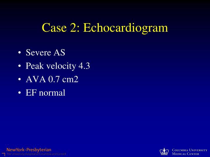 Case 2: Echocardiogram