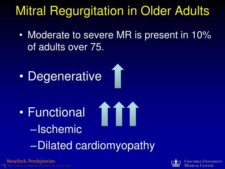 Mitral Regurgitation in Older Adults