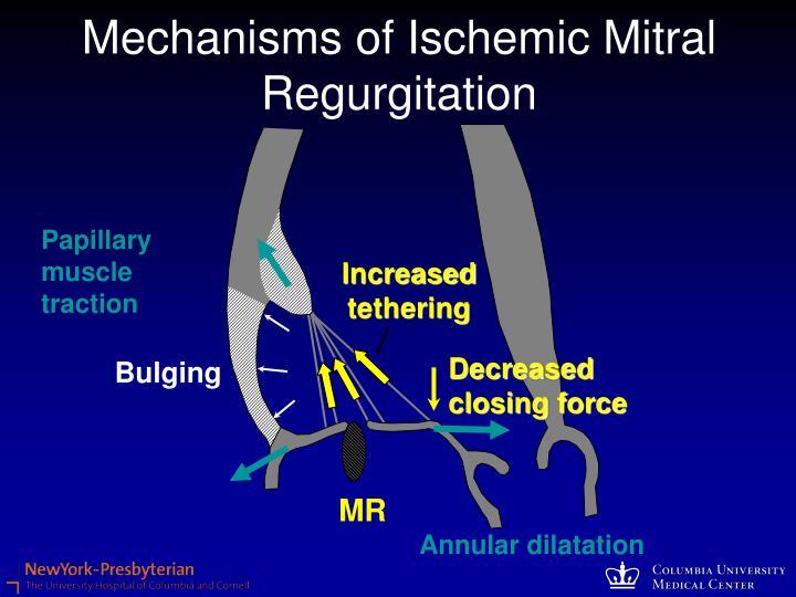 Mechanisms of Ischemic Mitral Regurgitation