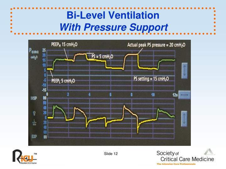Bi-Level Ventilation