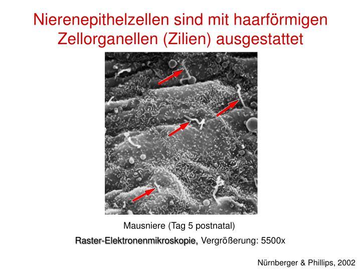 Nierenepithelzellen sind mit haarförmigen Zellorganellen (Zilien) ausgestattet