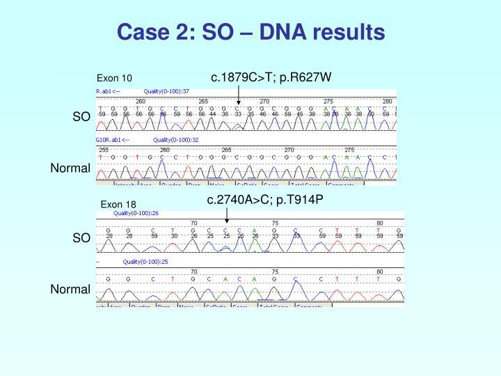 Case 2: SO – DNA results