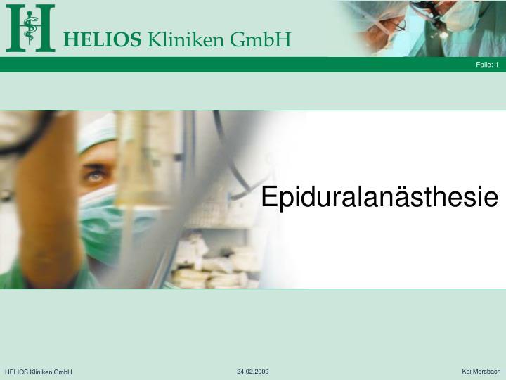 Epiduralanästhesie