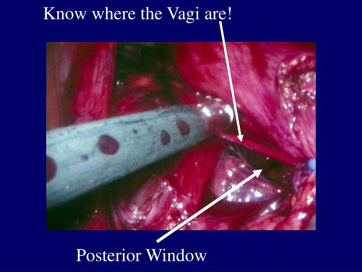 Know where the Vagi are!