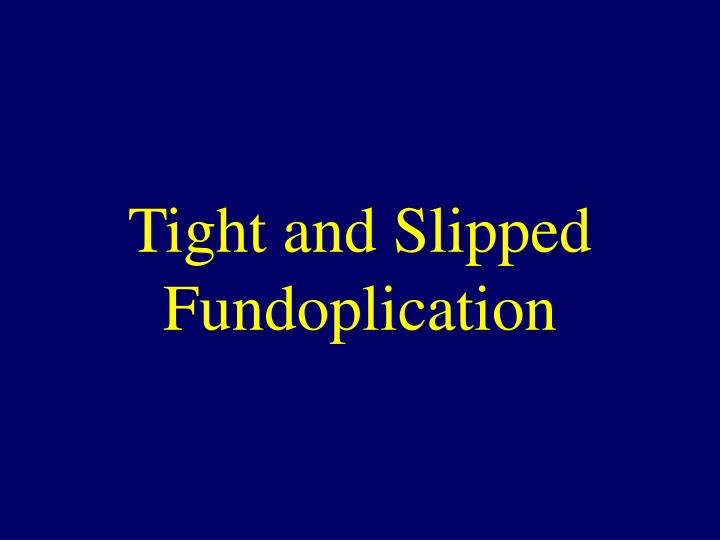 Tight and Slipped Fundoplication