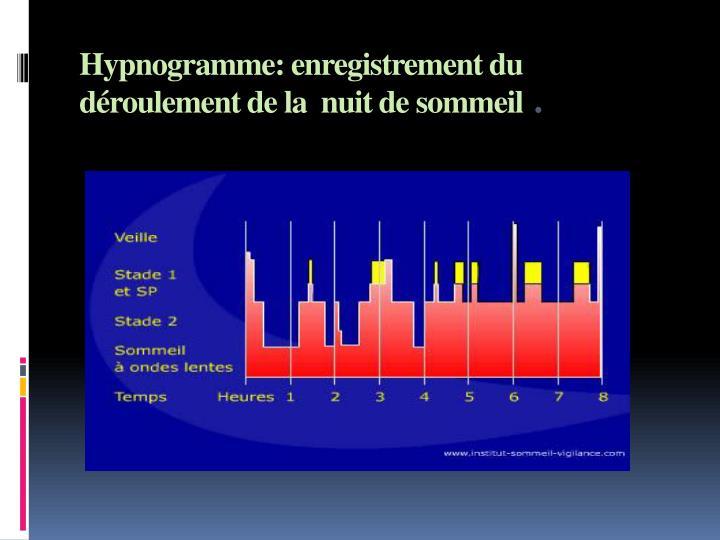 Hypnogramme: enregistrement du déroulement de la  nuit de sommeil