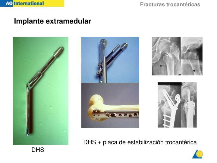 Implante extramedular
