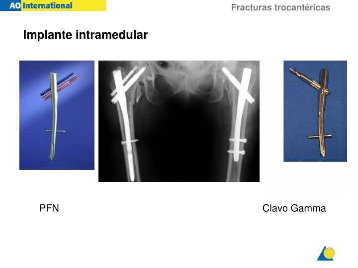 Implante intramedular