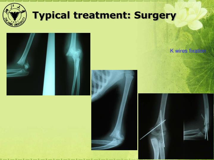 Typical treatment: Surgery