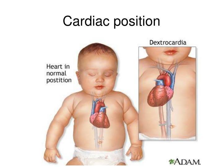 Cardiac position