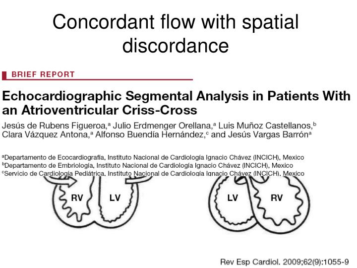 Concordant flow with spatial discordance