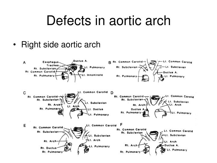 Defects in aortic arch