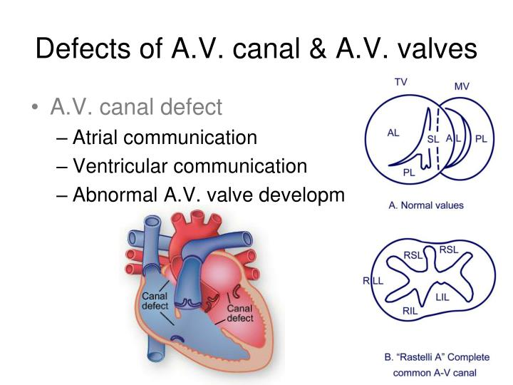 Defects of A.V. canal & A.V. valves