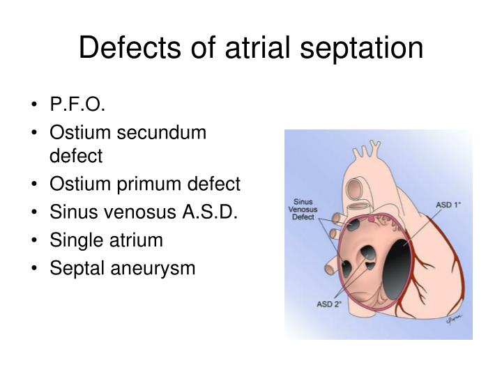 Defects of atrial septation